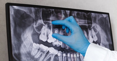 dentist pointing to an X-ray of a mouth