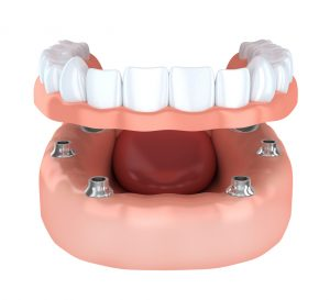 implant detained dentures 3D
